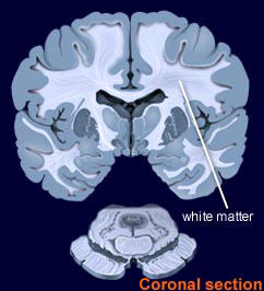 Coronal slice showing white matter