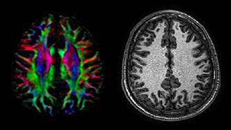 Research in Brain Function and Learning
