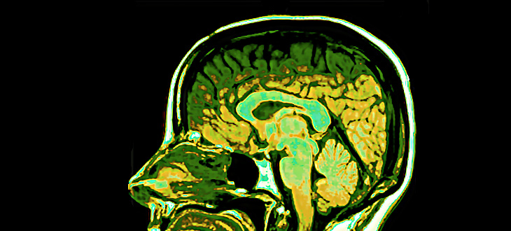 Discuss the use of brain imaging technologies in ...